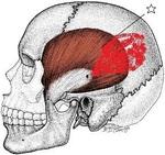 側頭骨d.jpg