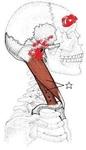胸鎖乳突筋 鎖骨部.jpg