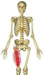 腸骨筋放散.jpg