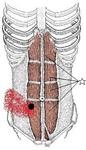 腹直筋、外側線維.jpg