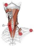 頚板状筋.jpg